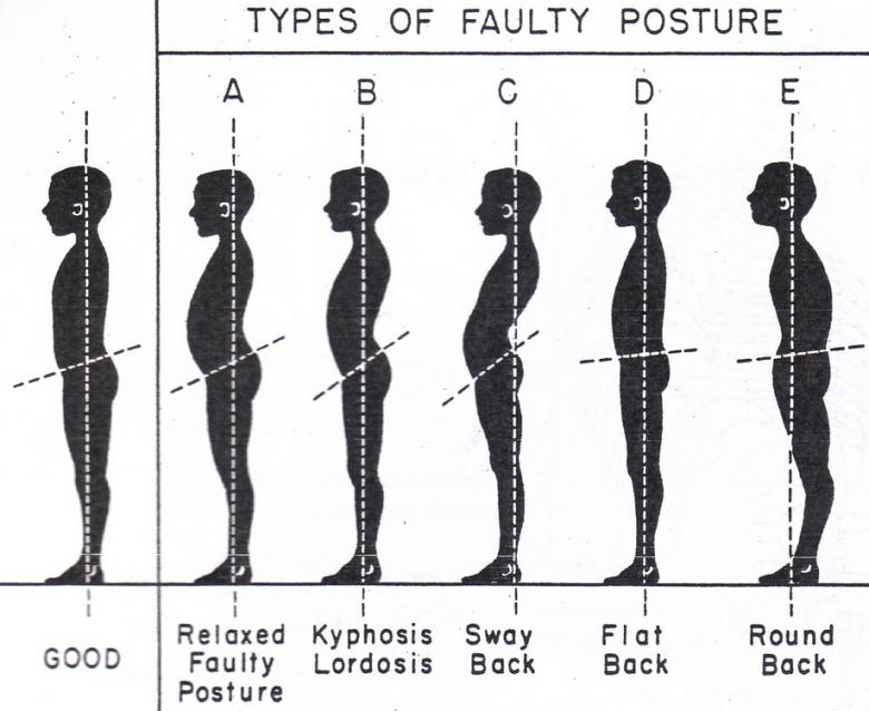type of posture